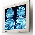 Globalmediapro T-MD13170A 17-inch Color Medical Monitor